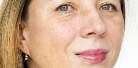 Starnutie pleti a tmavé škvrny možno riešiť