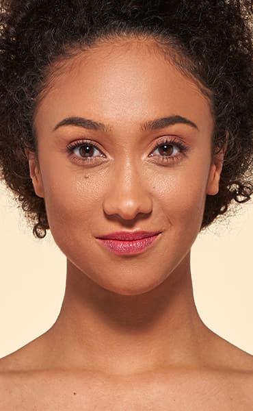 v_anim-vitiligo_2.jpg