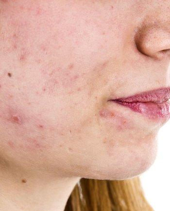 Čo potrebujete vedieť o akné v dospelosti?