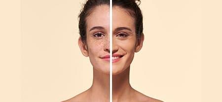 v_before_after-hyperpigmentation.jpg